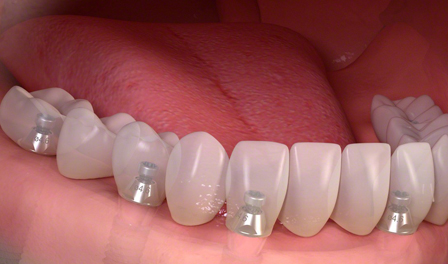 dental-implant-full-arch