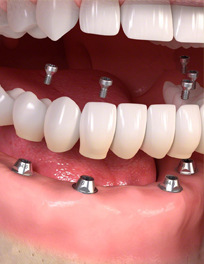 dental-implants-full-arch